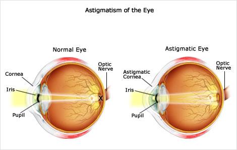 astigmatism.jpg