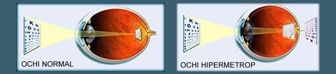 hipermetropia.jpg